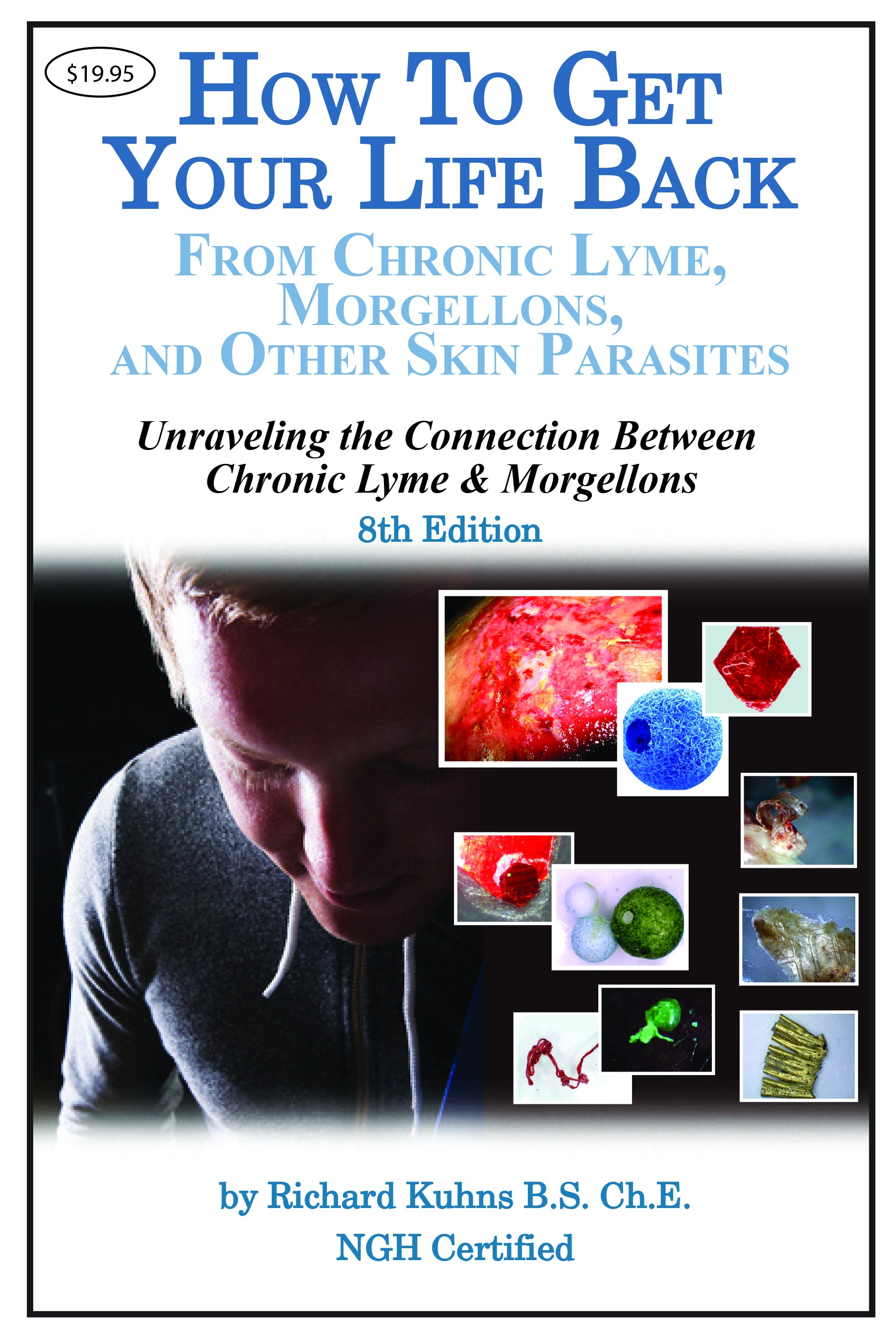 How To Get Your Life Back From Chronic Lyme, Morgellons, and Other Skin Parasites - ebook